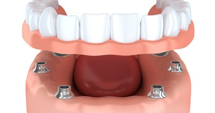 affordable dentures leesburg